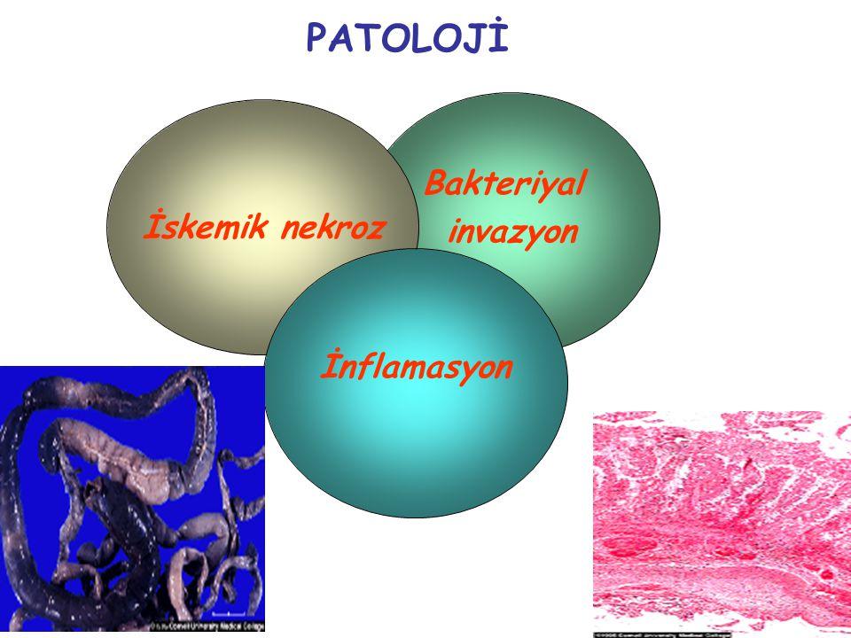 4 PATOLOJİ Bakteriyal invazyon İskemik nekroz İnflamasyon