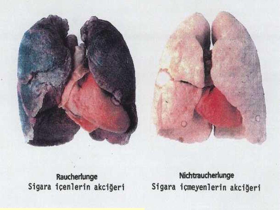 İSTANBUL, 31 MAYIS 200627 Sigara içilmesinin veya pasif sigara dumanı solumanın vücuttaki etkileri Genel Kötü ve ağır koku Rahim ve yumurtalıklar Kısırlık Çocuk düşürme Sakat, eksik doğum Erken Menopoz Rahim kanseri Beyin Felç, ileri yaşta bunama (Alzheimer) Her nefes 50 bin hücre öldürür Cilt Cilt bozukluğu olduğundan daha yaşlı gösterme cilt karalığı Gırtlak ve nefes borusu Gırtlak kanseri Gırtlak iltihabı ses tellerinin zarar görmesi Gözler Katarak, ileri yaşta körlük Burun Koku alma duygusunda azalma Dişler Kirli ve pis görünümlü dişler diş etleri hastalıkları Ağız ve yutak kansertat alma eksikliği Akciğerler Akciğer kanseri Bronşit, amfizem Kalp ve damarlar Kalp krizi ve ölümlerinin en başta gelen sebebi Damar tıkanıklığı Tansiyon yükselmesi Mide ve yemek borusu Kanseri, ülser, kanama Pankreas Kanser Testisler ve cinsel organ İktidarsızlık, ereksiyonda azalma dölleme yetersizliği, kalıtımsal bozukluklar Eller Parmaklarda sararma tırnaklarda zayıflama İdrar kesesi Mesane kanseri Kemikler ve iskelet Kemik erimesi Kol-bacak damarları Bu damarlardaki hastalıklar Kılcal damarlar El ve ayaklardan başlayarak kol ve bacaklara kadar tıkanıp bu organların kesilmesi (Burger hastalığı) Vücuttaki diğer etkiler Yorgunluk, uykusuzluk, ruhsal gerilim, stres,performans düşüklüğü reflekslerde azalma Gelecek Nesillere Miras Sigara içen babaların çocuklarında kanseri önleyen gen yok olarak doğuyor.