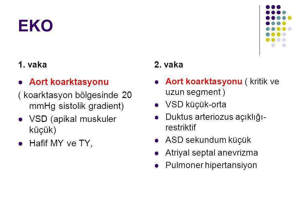 EKO 1. vaka Aort koarktasyonu ( koarktasyon bölgesinde 20 mmHg sistolik gradient) VSD (apikal muskuler küçük) Hafif MY ve TY, 2. vaka Aort koarktasyon