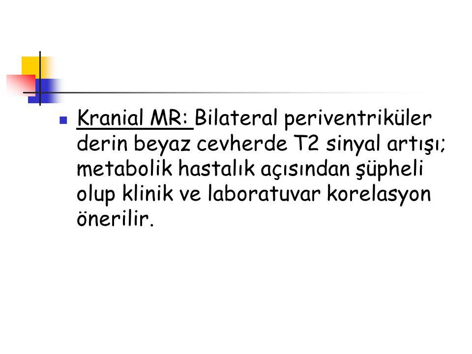 Hastamız: Metil prednizolon IVIG tedavileri verildi.