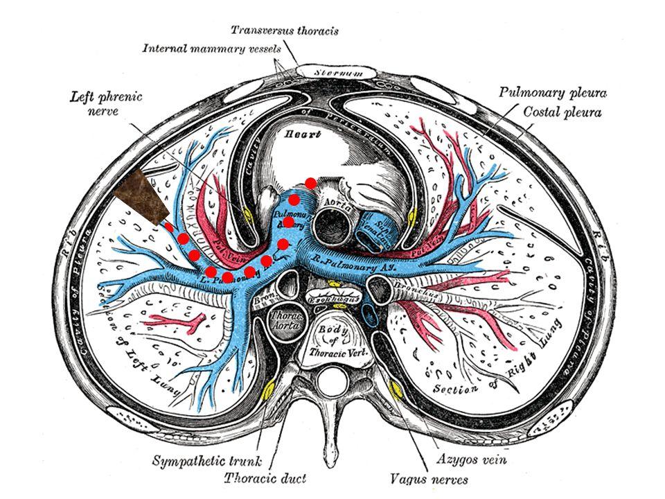 Pulmoner tromboembolisi olan hastaların en az % 70 kadarında (çoğunlukla asemptomatik olan) alt ekstremite derin ven trombozları saptanabilmektedir...