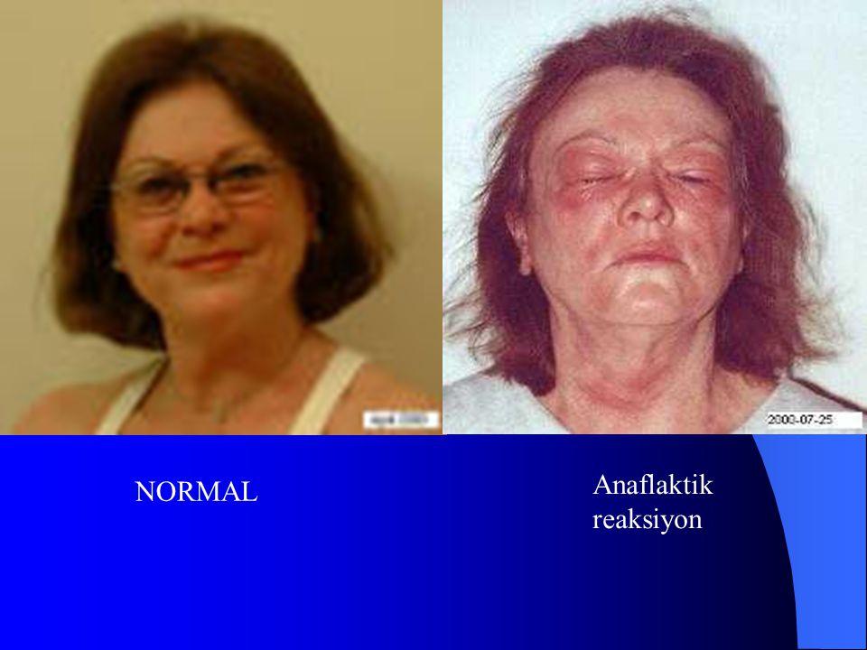 NORMAL Anaflaktik reaksiyon
