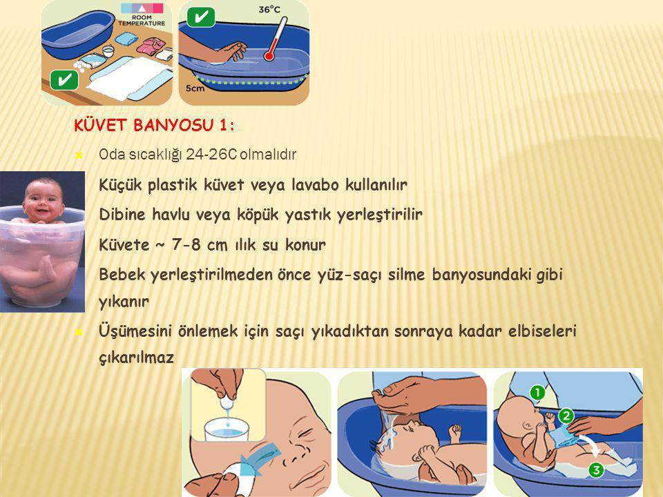 KÜVET BANYOSU 1:  Oda sıcaklığı 24-26C olmalıdır  Küçük plastik küvet veya lavabo kullanılır  Dibine havlu veya köpük yastık yerleştirilir  Küvete