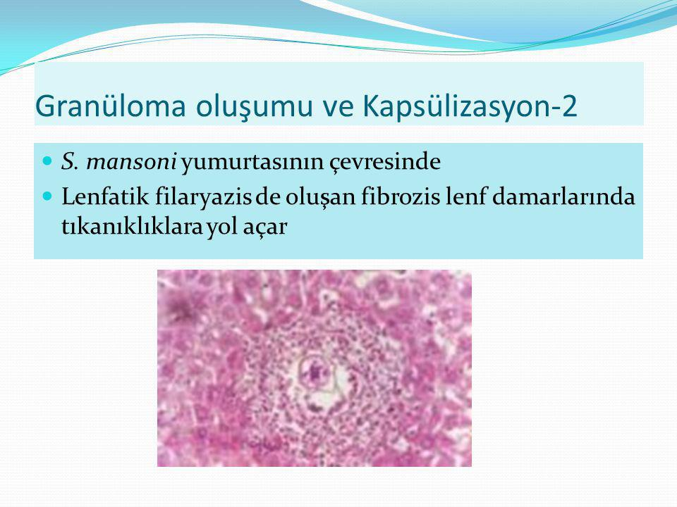 Granüloma oluşumu ve Kapsülizasyon-2 S. mansoni yumurtasının çevresinde Lenfatik filaryazis de oluşan fibrozis lenf damarlarında tıkanıklıklara yol aç
