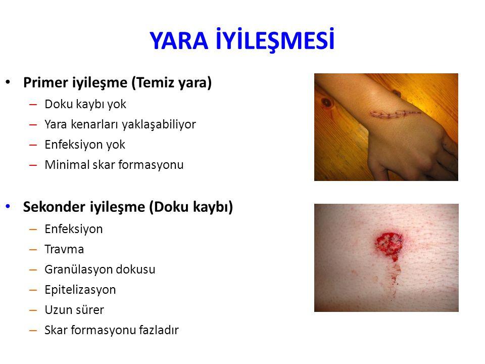 YARA İYİLEŞMESİ Primer iyileşme (Temiz yara) – Doku kaybı yok – Yara kenarları yaklaşabiliyor – Enfeksiyon yok – Minimal skar formasyonu Sekonder iyil