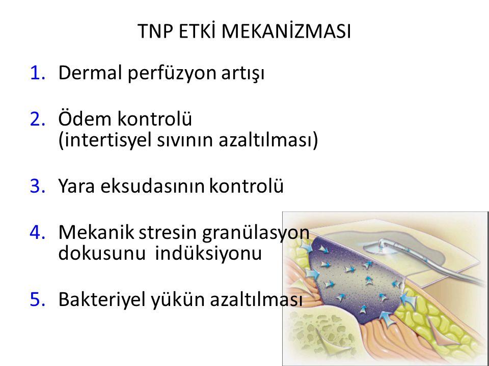 TNP ETKİ MEKANİZMASI 1.Dermal perfüzyon artışı 2.Ödem kontrolü (intertisyel sıvının azaltılması) 3.Yara eksudasının kontrolü 4.Mekanik stresin granüla