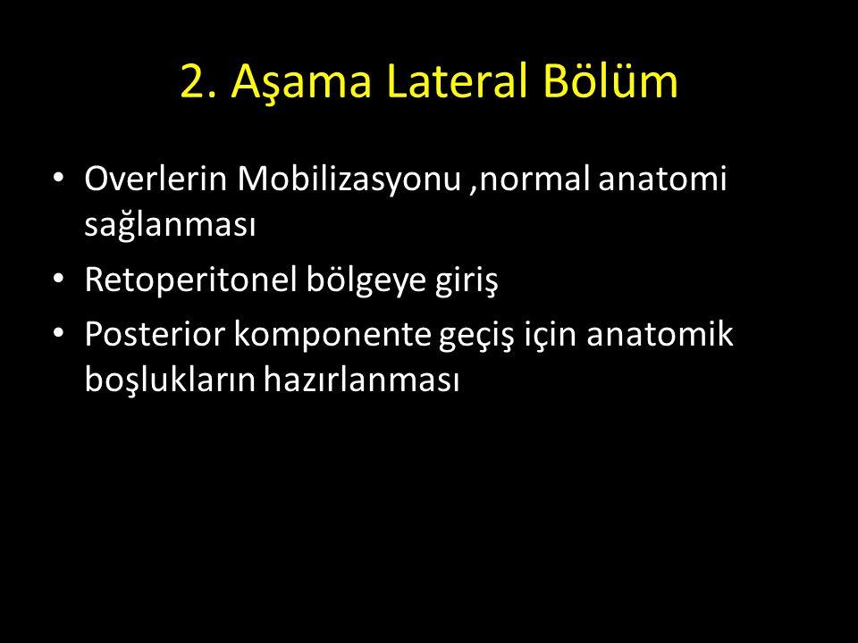 2. Aşama Lateral Bölüm Overlerin Mobilizasyonu,normal anatomi sağlanması Retoperitonel bölgeye giriş Posterior komponente geçiş için anatomik boşlukla