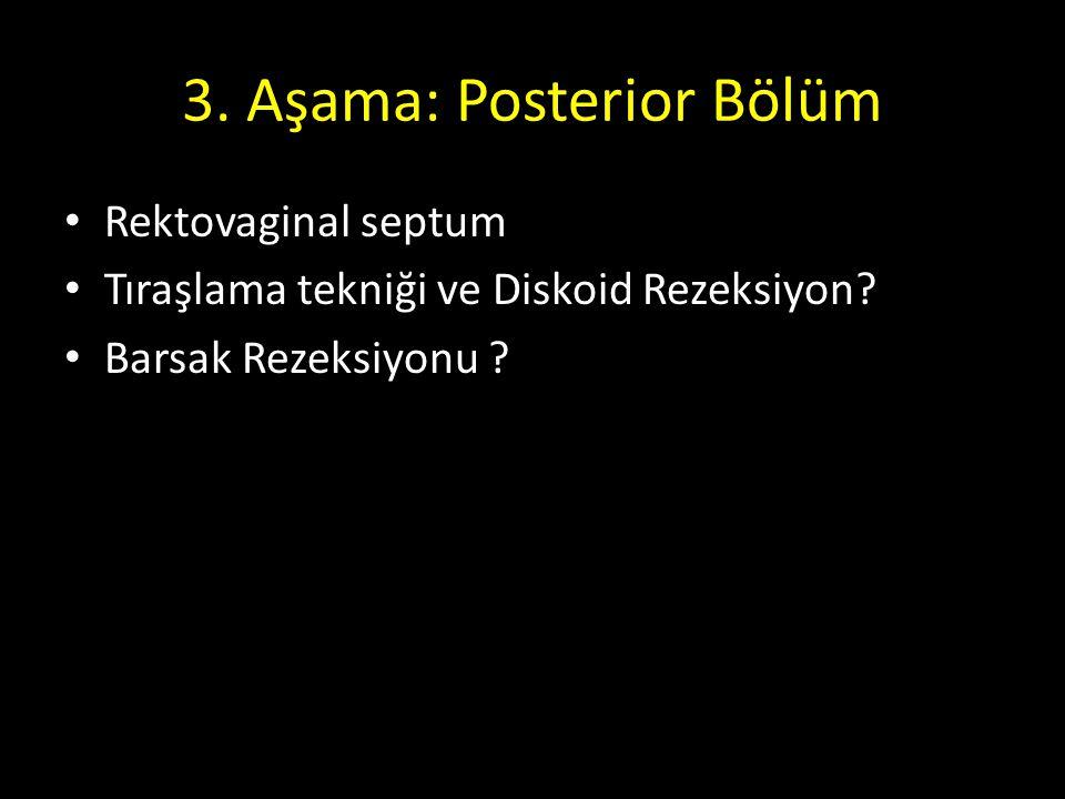 3. Aşama: Posterior Bölüm Rektovaginal septum Tıraşlama tekniği ve Diskoid Rezeksiyon? Barsak Rezeksiyonu ?