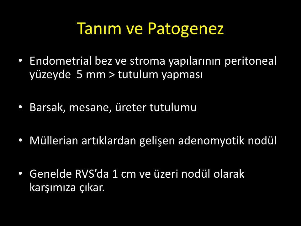 Tanım ve Patogenez Endometrial bez ve stroma yapılarının peritoneal yüzeyde 5 mm > tutulum yapması Barsak, mesane, üreter tutulumu Müllerian artıklard