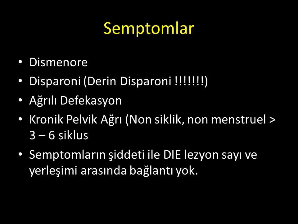 Semptomlar Dismenore Disparoni (Derin Disparoni !!!!!!!) Ağrılı Defekasyon Kronik Pelvik Ağrı (Non siklik, non menstruel > 3 – 6 siklus Semptomların ş