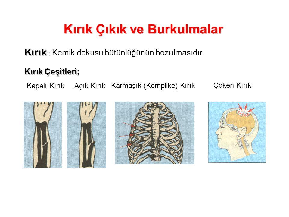 Kırık Çıkık ve Burkulmalar Kırık : Kırık : Kemik dokusu bütünlüğünün bozulmasıdır. Kırık Çeşitleri; Kapalı KırıkAçık Kırık Karmaşık (Komplike) Kırık Ç
