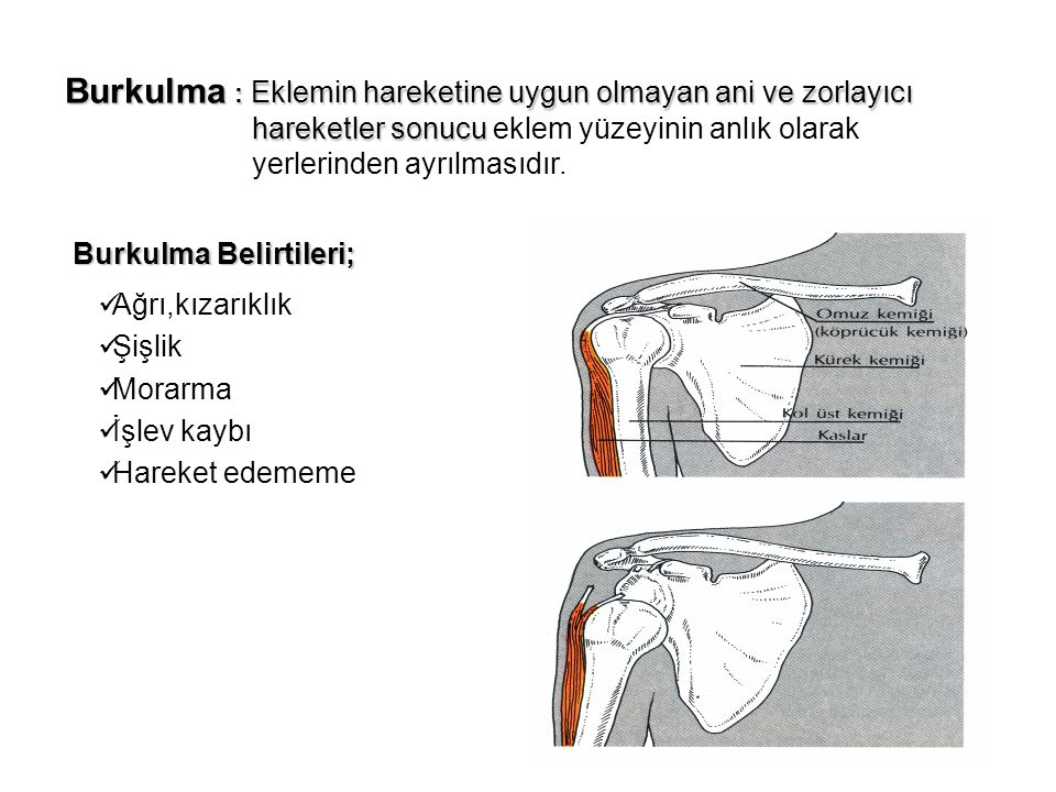 Burkulma : Eklemin hareketine uygun olmayan ani ve zorlayıcı hareketler sonucu hareketler sonucu eklem yüzeyinin anlık olarak yerlerinden ayrılmasıdır.