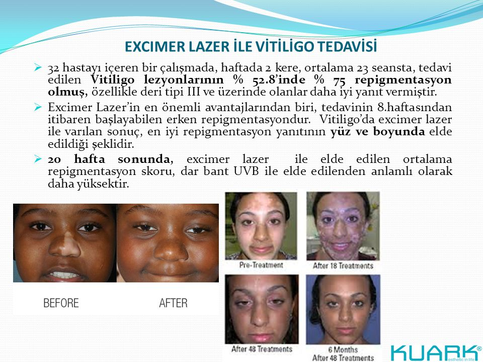 EXCIMER LAZER İLE VİTİLİGO TEDAVİSİ  32 hastayı içeren bir çalışmada, haftada 2 kere, ortalama 23 seansta, tedavi edilen Vitiligo lezyonlarının % 52.