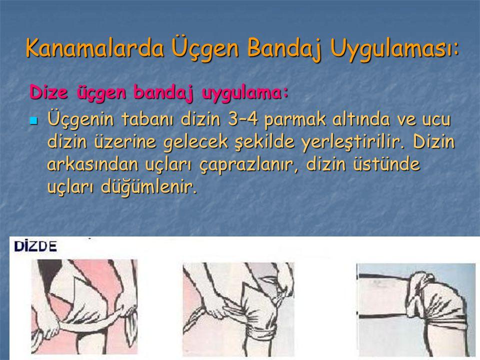 Kanamalarda Üçgen Bandaj Uygulaması: Dize üçgen bandaj uygulama: Üçgenin tabanı dizin 3–4 parmak altında ve ucu dizin üzerine gelecek şekilde yerleşti