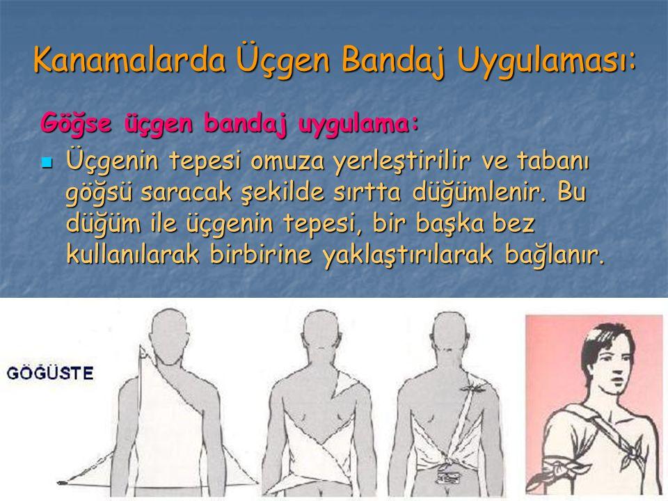Kanamalarda Üçgen Bandaj Uygulaması: Göğse üçgen bandaj uygulama: Üçgenin tepesi omuza yerleştirilir ve tabanı göğsü saracak şekilde sırtta düğümlenir