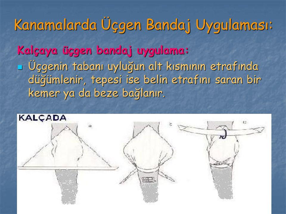 Kanamalarda Üçgen Bandaj Uygulaması: Kalçaya üçgen bandaj uygulama: Üçgenin tabanı uyluğun alt kısmının etrafında düğümlenir, tepesi ise belin etrafın