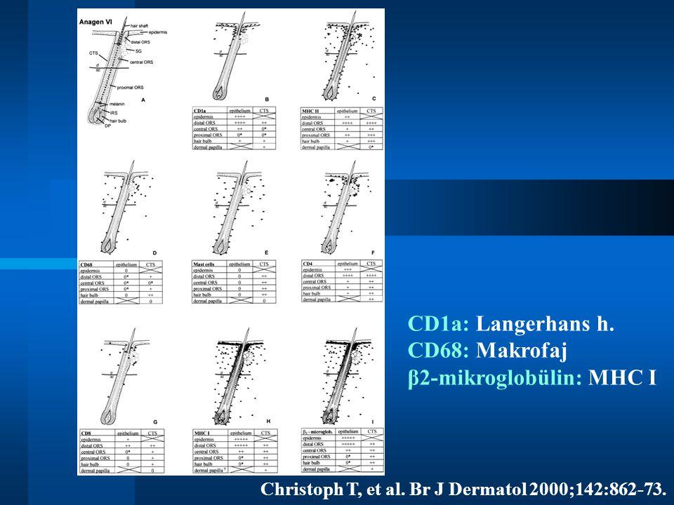 CD1a: Langerhans h. CD68: Makrofaj β2-mikroglobülin: MHC I Christoph T, et al. Br J Dermatol 2000;142:862-73.