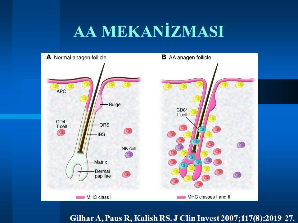 Gilhar A, Paus R, Kalish RS. J Clin Invest 2007;117(8):2019-27. AA MEKANİZMASI