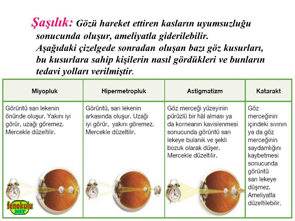 Şaşılık: Gözü hareket ettiren kasların uyumsuzluğu sonucunda oluşur, ameliyatla giderilebilir. Aşağıdaki çizelgede sonradan oluşan bazı göz kusurları,