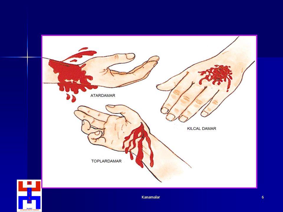 Kanamalar27 Dize Üçgen Bandaj Üçgenin tabanı dizin 3-4 parmak altında ve ucu dizin üzerine gelecek şekilde yerleştirilir.