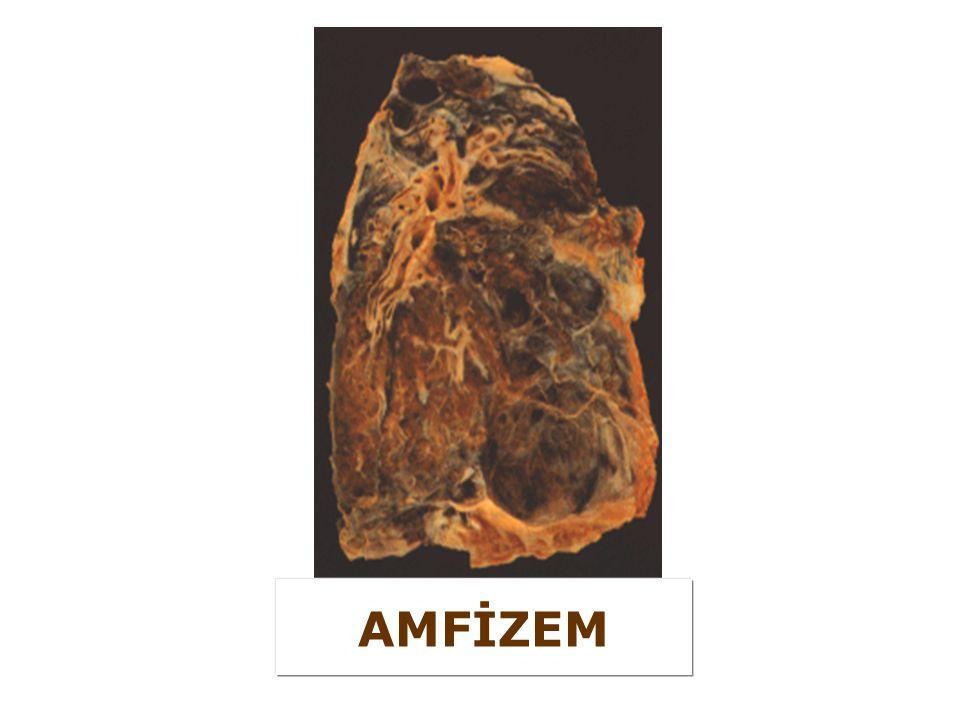 AMFİZEM