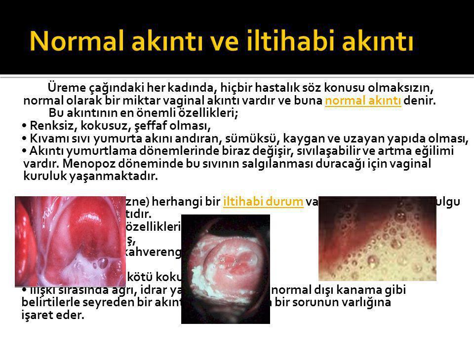 Üreme çağındaki her kadında, hiçbir hastalık söz konusu olmaksızın, normal olarak bir miktar vaginal akıntı vardır ve buna normal akıntı denir. Bu akı