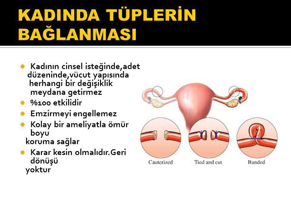 Kadının cinsel isteğinde,adet düzeninde,vücut yapısında herhangi bir değişiklik meydana getirmez %100 etkilidir Emzirmeyi engellemez Kolay bir ameliyatla ömür boyu koruma sağlar Karar kesin olmalıdır.Geri dönüşü yoktur