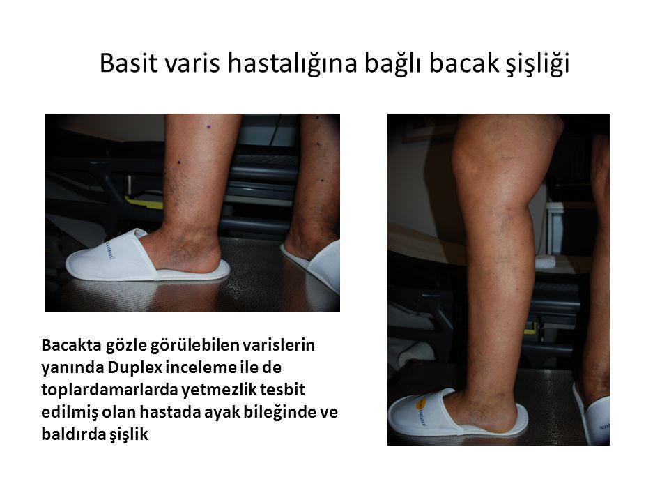 Basit varis hastalığına bağlı bacak şişliği Bacakta gözle görülebilen varislerin yanında Duplex inceleme ile de toplardamarlarda yetmezlik tesbit edil