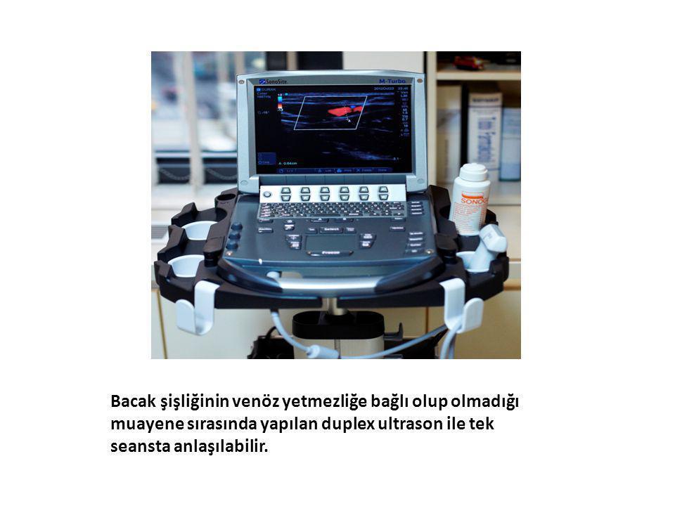 Bacak şişliğinin venöz yetmezliğe bağlı olup olmadığı muayene sırasında yapılan duplex ultrason ile tek seansta anlaşılabilir.