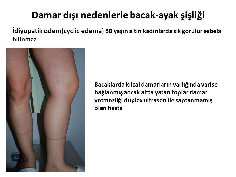 Damar dışı nedenlerle bacak-ayak şişliği İdiyopatik ödem(cyclic edema) 50 yaşın altın kadınlarda sık görülür sebebi bilinmez Bacaklarda kılcal damarla