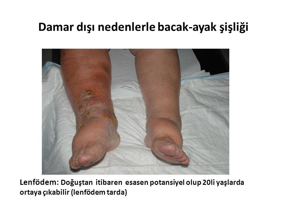 Damar dışı nedenlerle bacak-ayak şişliği Lenfödem: Doğuştan itibaren esasen potansiyel olup 20li yaşlarda ortaya çıkabilir (lenfödem tarda)