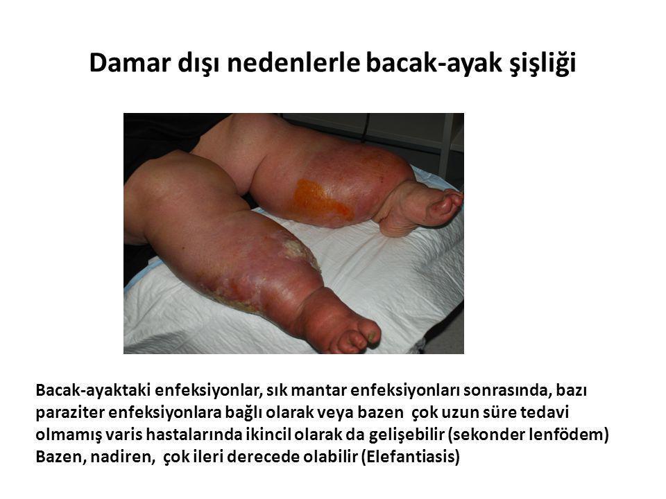 Damar dışı nedenlerle bacak-ayak şişliği Bacak-ayaktaki enfeksiyonlar, sık mantar enfeksiyonları sonrasında, bazı paraziter enfeksiyonlara bağlı olara