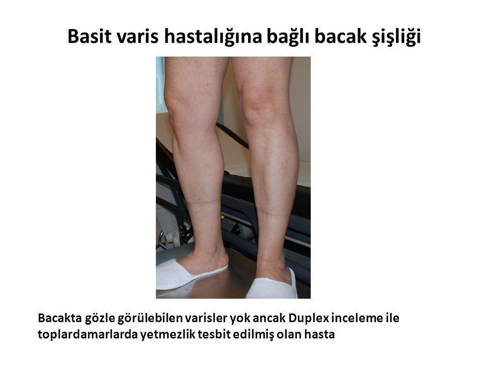 Basit varis hastalığına bağlı bacak şişliği Bacakta gözle görülebilen varisler yok ancak Duplex inceleme ile toplardamarlarda yetmezlik tesbit edilmiş