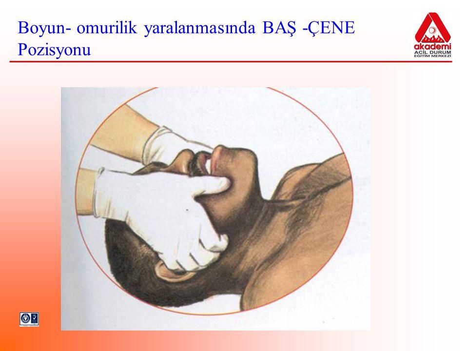 Boyun- omurilik yaralanmasında BAŞ -ÇENE Pozisyonu