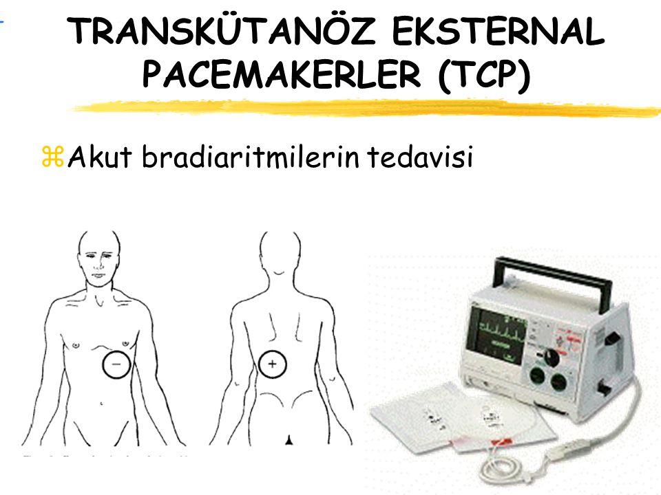 TRANSKÜTANÖZ EKSTERNAL PACEMAKERLER (TCP) zAkut bradiaritmilerin tedavisi