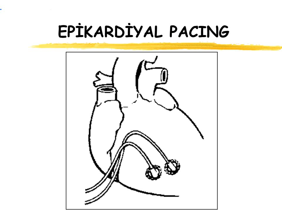 EPİKARDİYAL PACING FIGURE 3a (top). Chest radiograph of a young patient with a dual chamber pacing system implanted using the epicardial approach. The