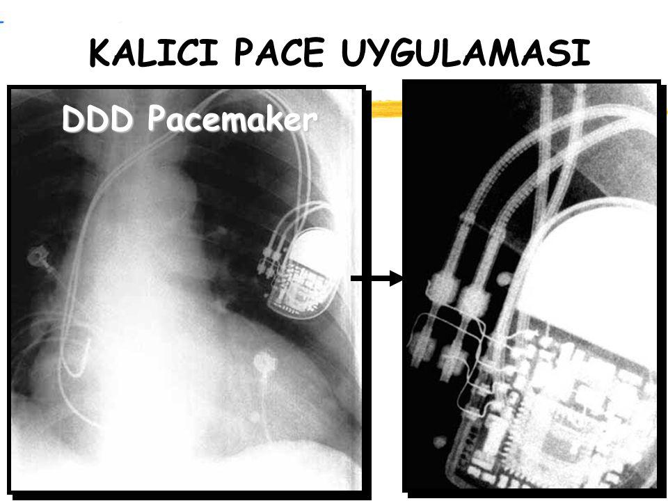 KALICI PACE UYGULAMASI DDD Pacemaker
