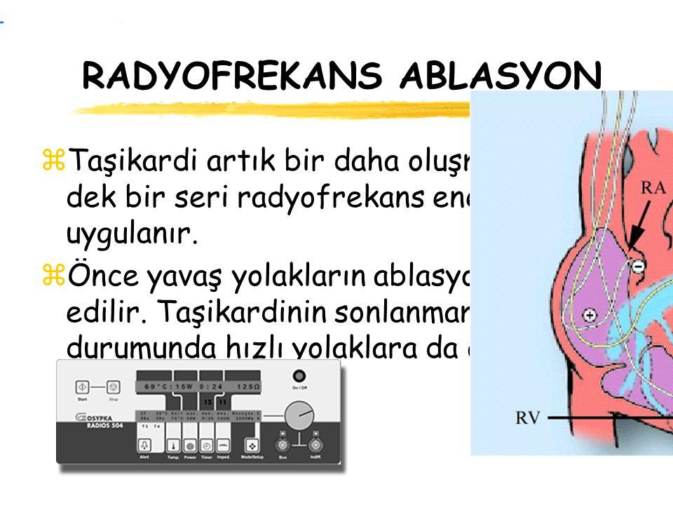 RADYOFREKANS ABLASYON zTaşikardi artık bir daha oluşmayınca dek bir seri radyofrekans enerjisi uygulanır. zÖnce yavaş yolakların ablasyonu tercih edil