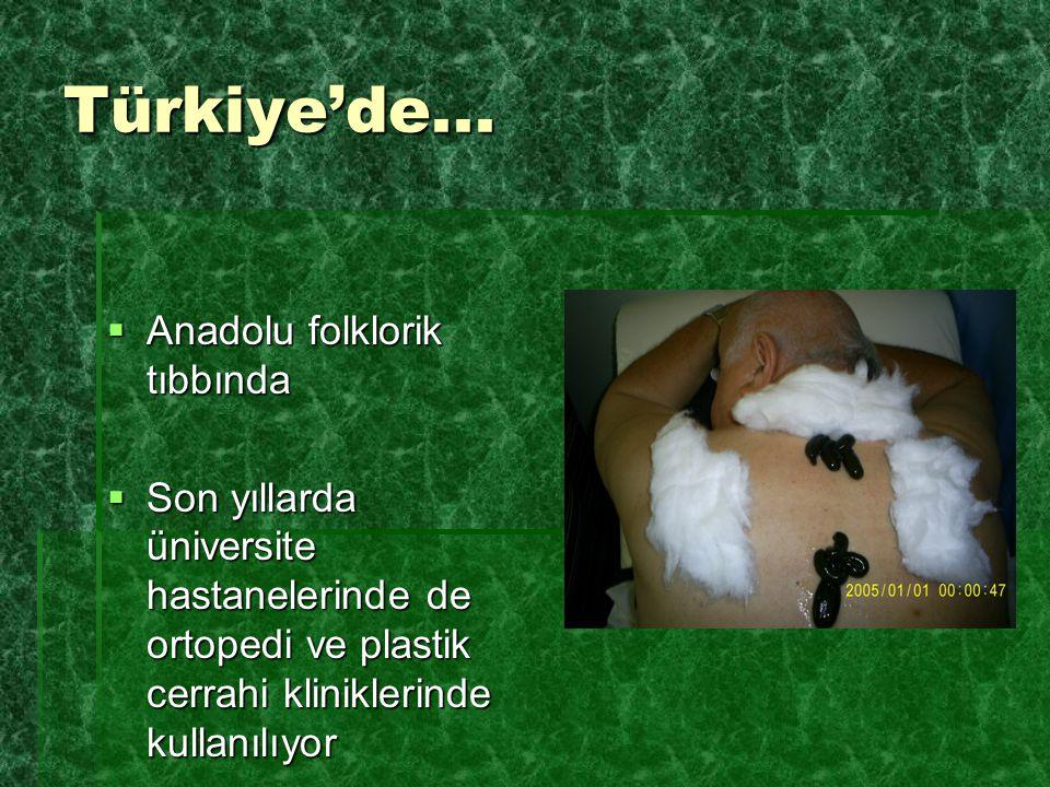 Türkiye'de...  Anadolu folklorik tıbbında  Son yıllarda üniversite hastanelerinde de ortopedi ve plastik cerrahi kliniklerinde kullanılıyor