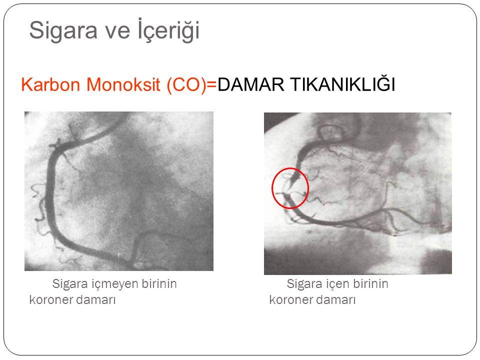 Sigara içmeyen birinin Sigara içen birinin koroner damarı koroner damarı Karbon Monoksit (CO)=DAMAR TIKANIKLIĞI Sigara ve İçeriği