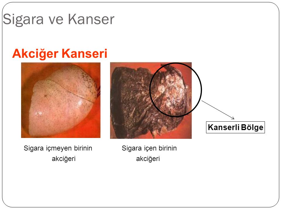 Sigara ve Kanser Akciğer Kanseri Sigara içmeyen birinin Sigara içen birinin akciğeri Kanserli Bölge