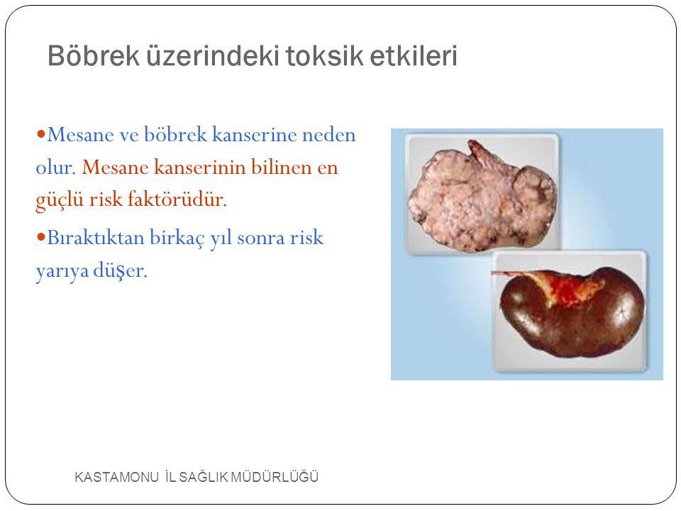 KASTAMONU İL SAĞLIK MÜDÜRLÜĞÜ Böbrek üzerindeki toksik etkileri Mesane ve böbrek kanserine neden olur. Mesane kanserinin bilinen en güçlü risk faktörü