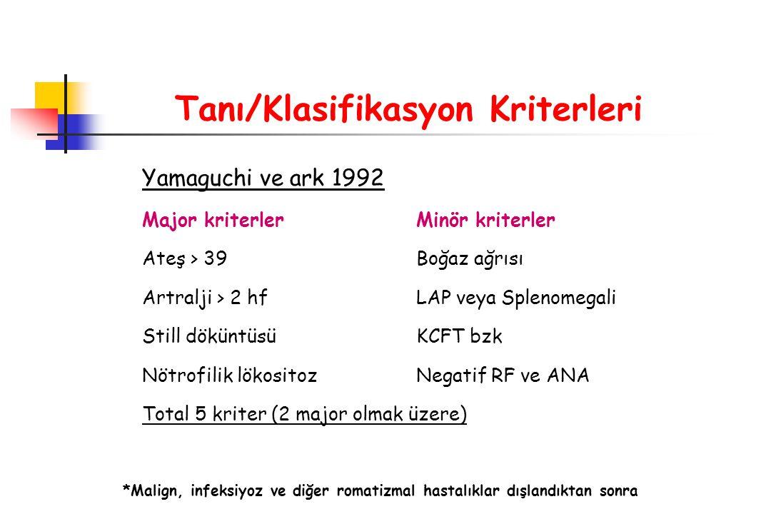 Tanı/Klasifikasyon Kriterleri Yamaguchi ve ark 1992 Major kriterlerMinör kriterler Ateş > 39Boğaz ağrısı Artralji > 2 hfLAP veya Splenomegali Still dö