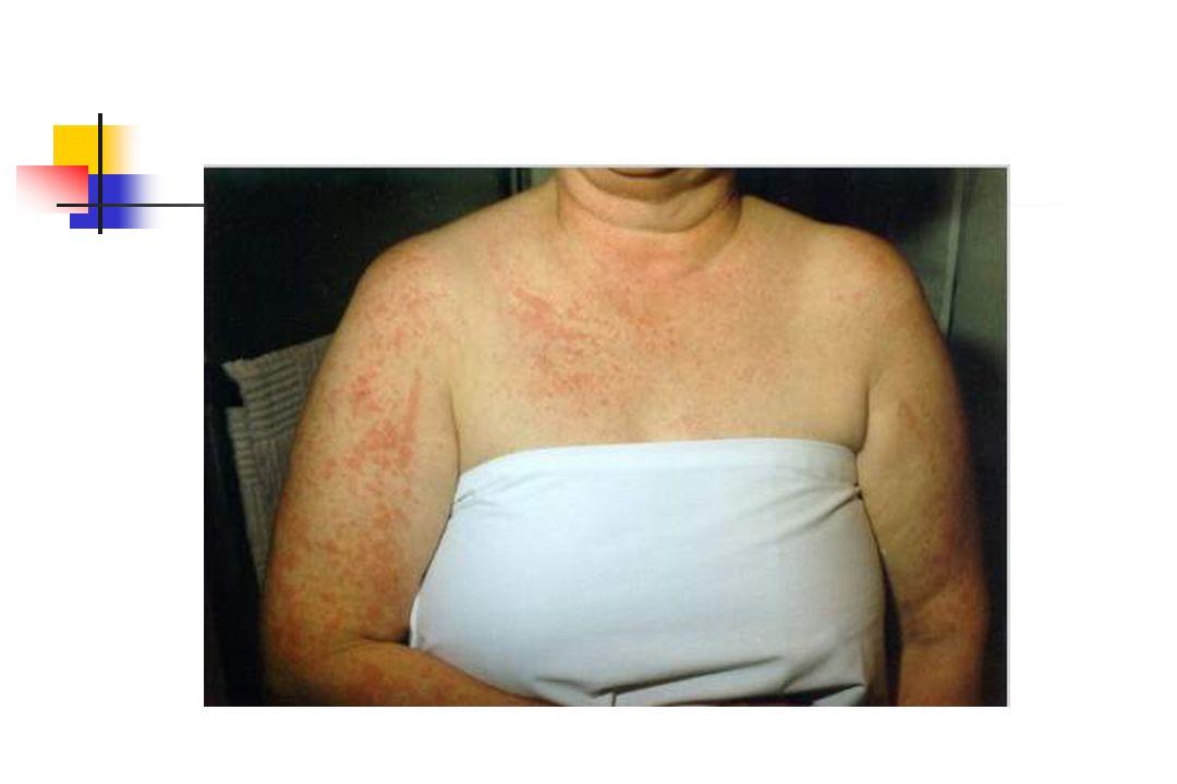 Tedavi Sulfasalazin ile tedavide yüksek toksisite sıklığı Sulfapyridine hidroksilasyonu sitokrom p450 İL-1 sitokrom p450 düzeyini azaltır Jung JH ve ark Clinical and Experimental Rheumatology 2000