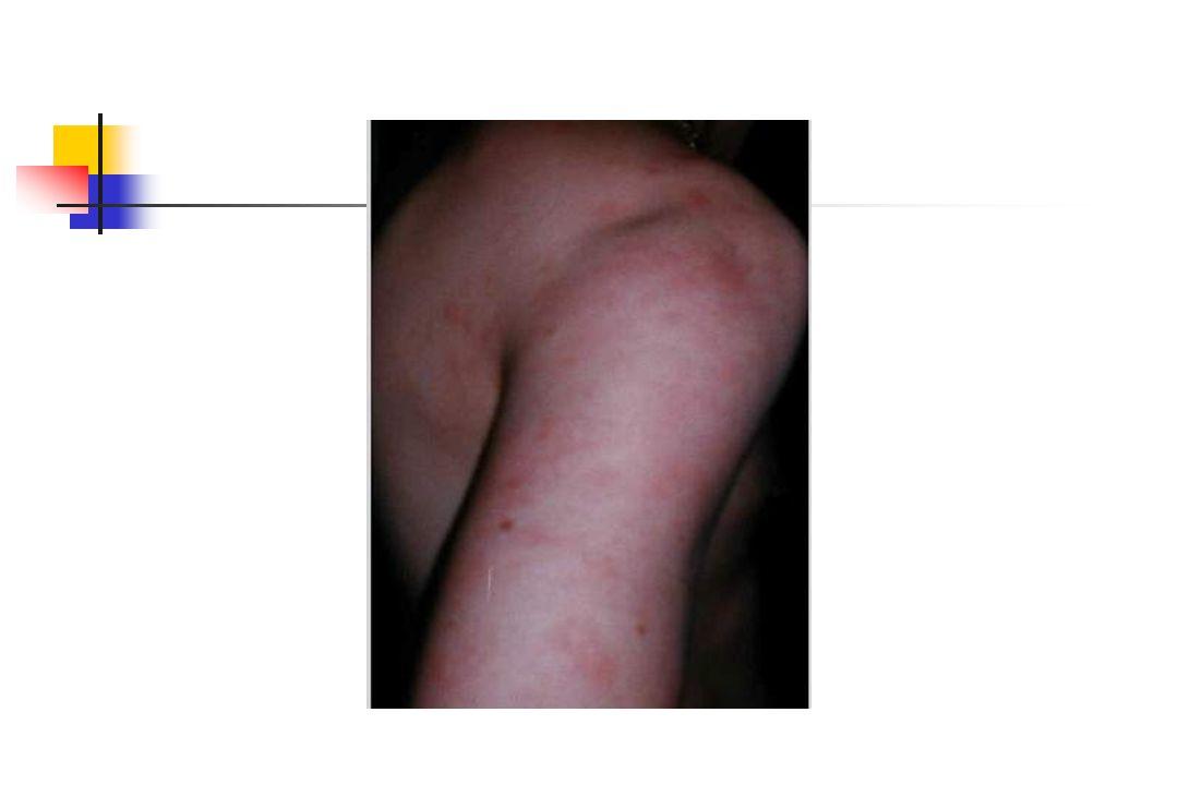 Tanı/Klasifikasyon Kriterleri Yamaguchi ve ark 1992 Major kriterlerMinör kriterler Ateş > 39Boğaz ağrısı Artralji > 2 hfLAP veya Splenomegali Still döküntüsüKCFT bzk Nötrofilik lökositozNegatif RF ve ANA Total 5 kriter (2 major olmak üzere) *Malign, infeksiyoz ve diğer romatizmal hastalıklar dışlandıktan sonra