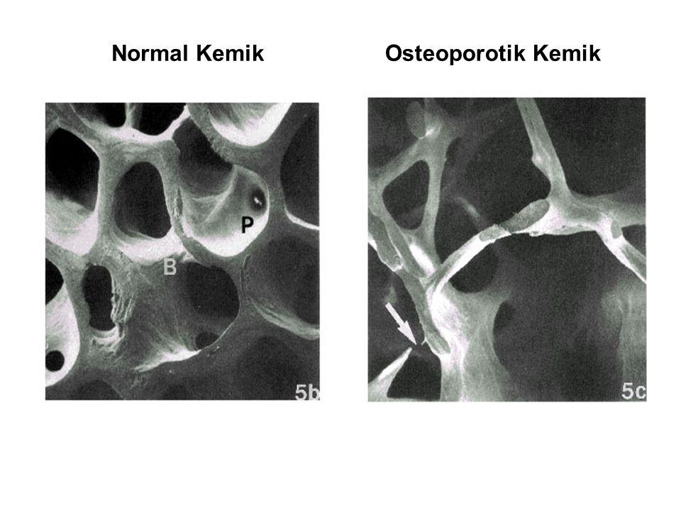 STRONSİYUM RANELAT Kemik oluşumunu uyarır, kemik rezorpsiyonunu azaltır.