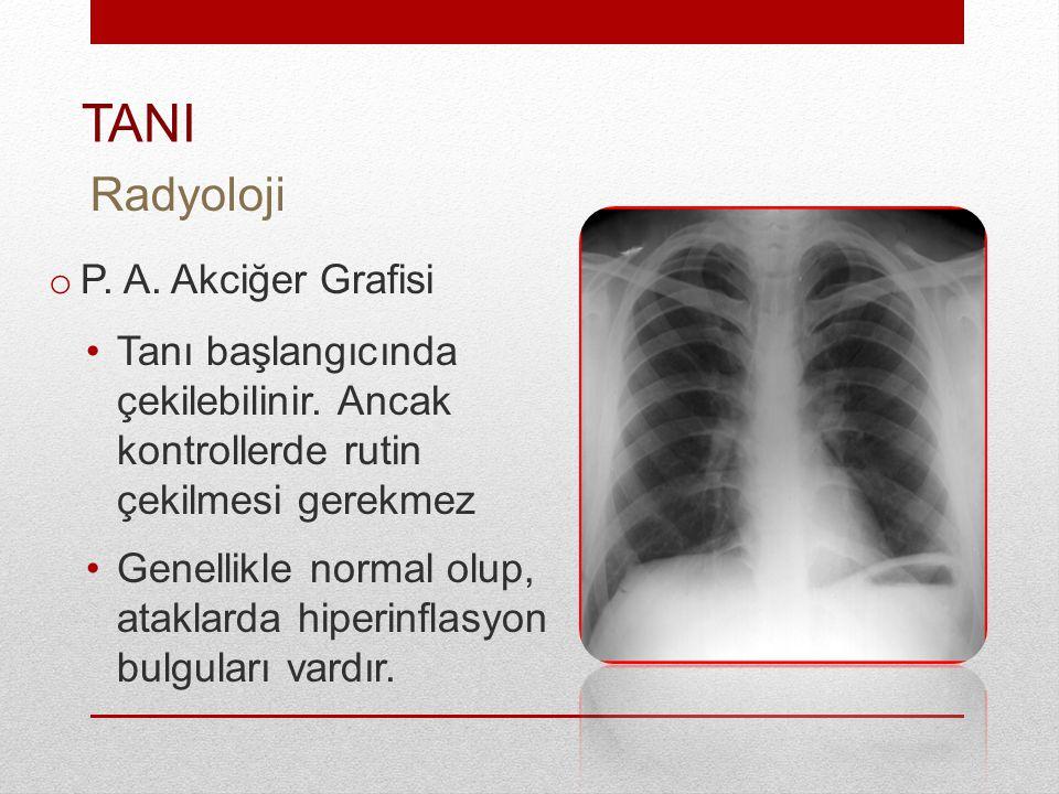 o P.A. Akciğer Grafisi Tanı başlangıcında çekilebilinir.