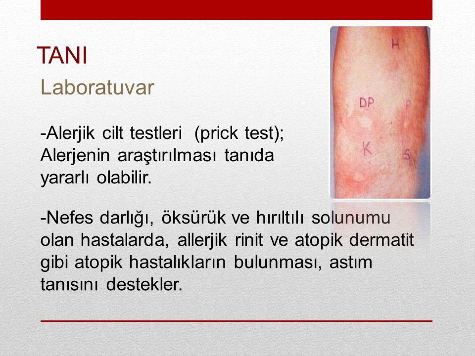 -Alerjik cilt testleri (prick test); Alerjenin araştırılması tanıda yararlı olabilir.