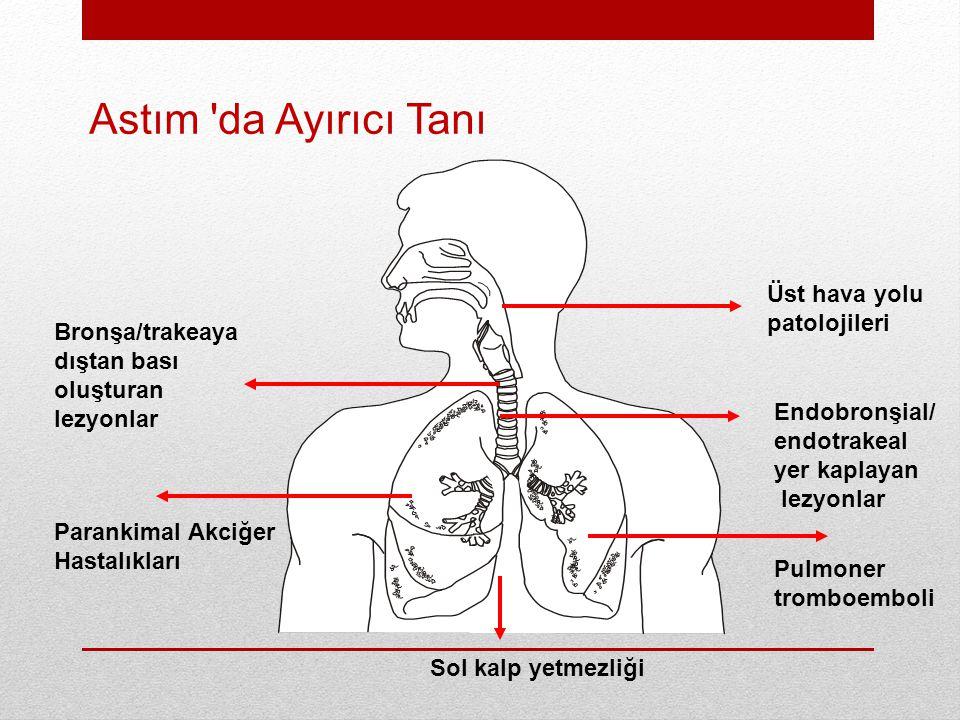 Parankimal Akciğer Hastalıkları Endobronşial/ endotrakeal yer kaplayan lezyonlar Üst hava yolu patolojileri Pulmoner tromboemboli Bronşa/trakeaya dıştan bası oluşturan lezyonlar Sol kalp yetmezliği Astım da Ayırıcı Tanı