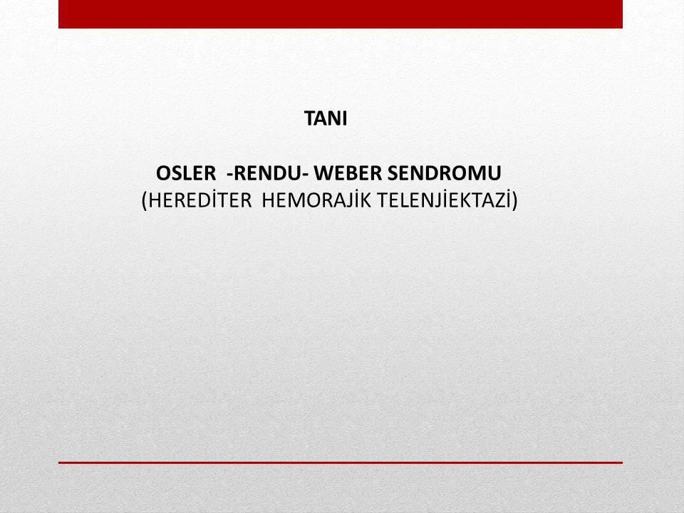 TANI OSLER -RENDU- WEBER SENDROMU (HEREDİTER HEMORAJİK TELENJİEKTAZİ)